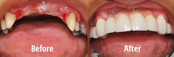 After 4 Months Of Wearing The Temporary Bridge And Healing Gums We Have Made Dental Which Rebuilt Anterior
